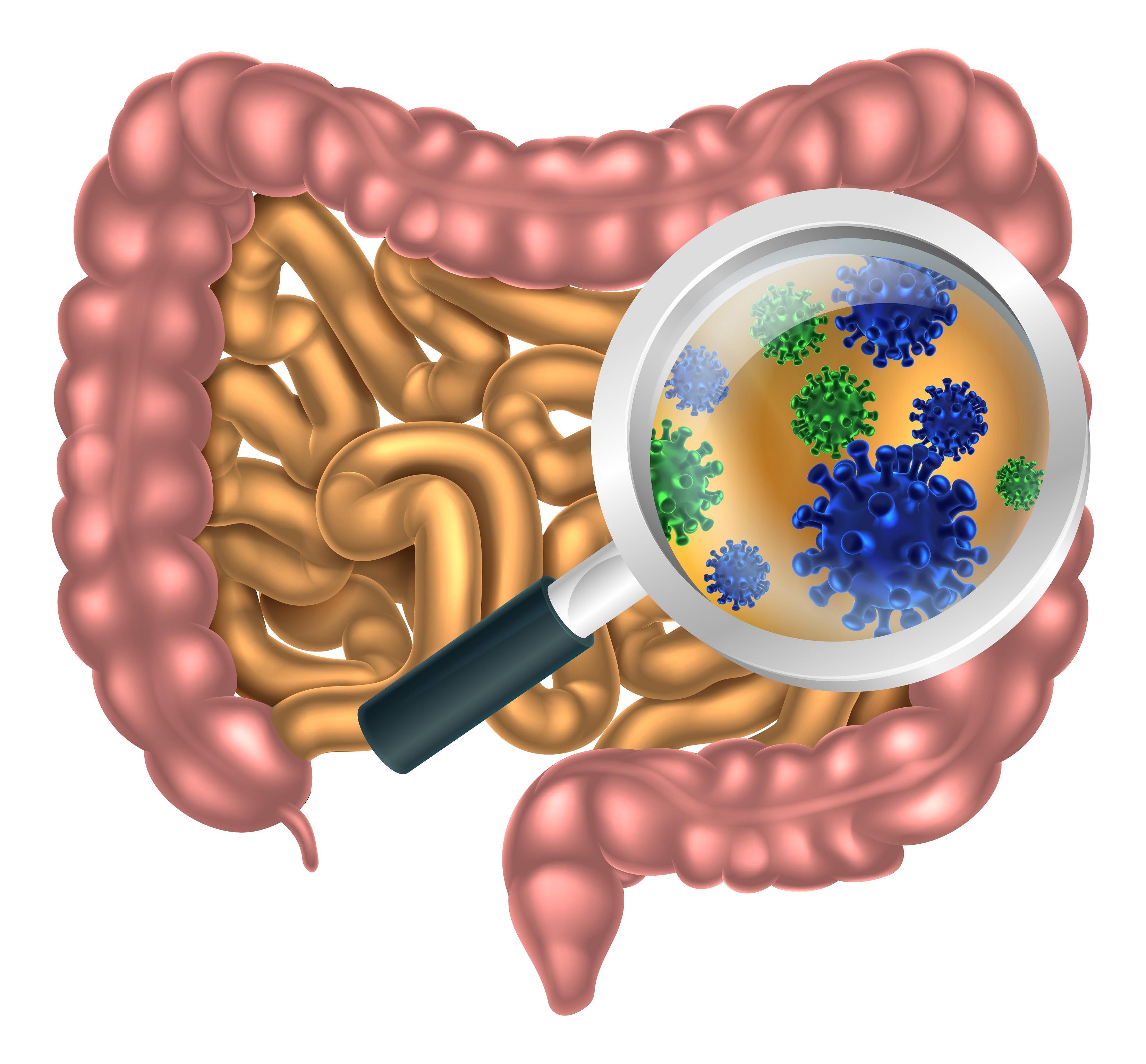 Microbioom verkleind